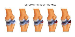 Osteoartrite del ginocchio illustrazione di stock