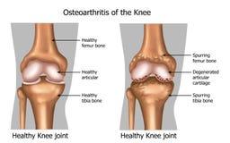 Osteoartrite del ginocchio Fotografie Stock