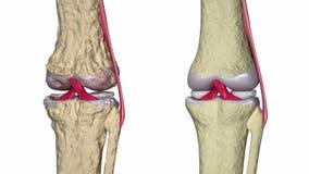 Osteoartrite: Giunto di ginocchio con i legamenti e le cartilagini illustrazione vettoriale