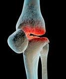 Osteoartritis Imagen de archivo libre de regalías