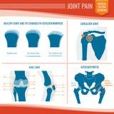 Osteoartritis en reumatiek gezamenlijke pijn medische vector infographic royalty-vrije illustratie