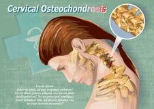 Osteochondrosis cervical Imagem de Stock