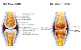 osteodistrofia Imagem de Stock
