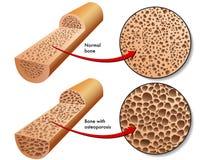 Osteoporose Lizenzfreie Stockfotos