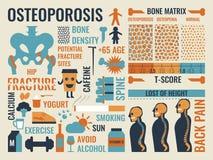 osteoporose vektor abbildung