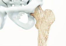 Osteoporose - hogere lidmaatbeenderen - het 3d teruggeven royalty-vrije illustratie