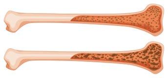 Osteoporose no osso humano Fotos de Stock