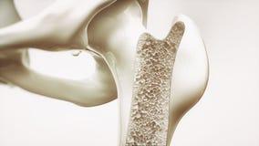 Osteoporosestadium 3 van 4 - hogere lidmaatbeenderen - het 3d teruggeven Stock Afbeeldingen