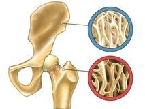 Osteoporosi Fotografia Stock Libera da Diritti