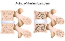 Osteoporosi del tratto lombare della colonna vertebrale illustrazione vettoriale