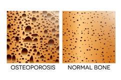 osteoporosis Fotografia de Stock