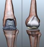 osteoporosis ilustración del vector
