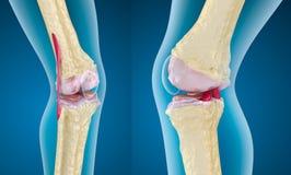 Osteoporosis av knäleden royaltyfri illustrationer