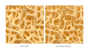 Osteoporosis. Bone spongy structure close-ups, normal and with osteoporosis Royalty Free Stock Image