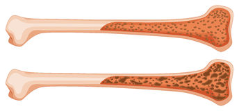 Osteoporosis in human bone. Illustration Stock Photos