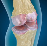 Osteoporosis of the knee joint Stock Photos