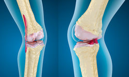 Osteoporosis of the knee joint. 3d render Stock Image