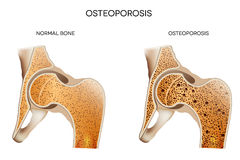 Osteoporosis Royalty Free Stock Photography