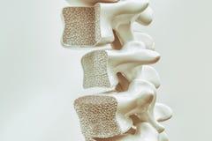 Osteoporosis på ryggen - tolkning 3d royaltyfri illustrationer
