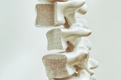 Osteoporosis on the spine - 3d rendering royalty free illustration