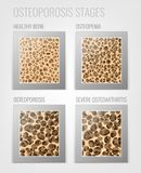 Osteoporosis Stages Image. Osteoporosis bone and healthy bone in comparison  on a white background. Vector illustration useful for medical, educational or Stock Photos