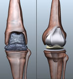 Osteoporosis. A stylized 3d visualization showing osteoporosis on the knee ancle and an artifical replacement Royalty Free Stock Photo