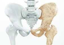 Osteoporosis - upper limb bones - 3d rendering. Osteoporosis upper limb bones - human body Royalty Free Stock Images