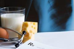 Osteoporosiskalciummejeriprodukt och röntgenstrålefoto arkivbild