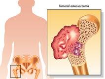 Osteosarcoma Femoral Fotos de Stock Royalty Free