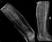 Osteosynthesis del hueso tibial fracturado Imágenes de archivo libres de regalías