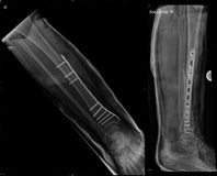 Osteosynthesis of fractured tibial bone. Xray image showing fracture of fibular bone and osteosynthesis of tibial bone and ankle joint wrapped with cast Royalty Free Stock Images