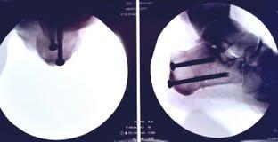 Osteotomy van het hielbeen en peesoverdracht Royalty-vrije Stock Foto's