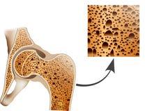 Ostéoporose dans l'os de fémur Image stock