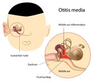 Otitis media Royalty Free Stock Photography