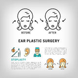 Otoplasty Ear Plastic Surgery logos Face cosmetic procedure Vector icons Royalty Free Stock Photos