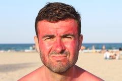 Ottenere dell'uomo ha bruciato alla spiaggia Immagine Stock