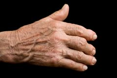 Oude hand met artritis Royalty-vrije Stock Afbeelding