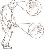 Oude mens met de symptomen van Parkinson het moeilijke lopen vector illustratie