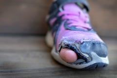 Oude schoenen met gaten dakloze tenen die uit plakken royalty-vrije stock fotografie