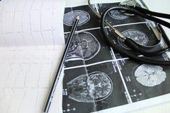 Outil médical Photographie stock libre de droits