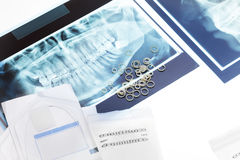 Outils et rayon X orthodontiques sur la table Photo stock