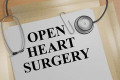 Ouvrez la chirurgie cardiaque - concept de santé Photos libres de droits