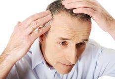 Ovanför sikt av en man som undersöker hans hår arkivfoton