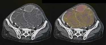 Ovarian cancer, CT Stock Image