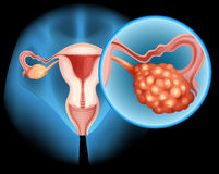 Ovarian cancer diagram in detail Stock Photos