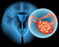 Ovarian cancer in human Royalty Free Stock Photos