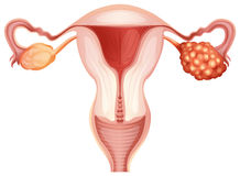 Ovarian cancer in woman Stock Photo