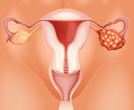 Ovarian cancer in woman Stock Image