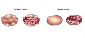 Ovarios de Polycistic y ovarios normales Fotos de archivo libres de regalías