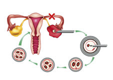 Ovary problem Stock Photo